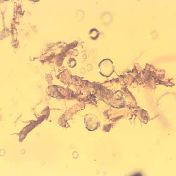 Rare Swarm Of Elongate Springtail And Flower Bud In Dominican Amber